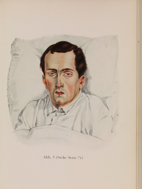 Man with Typhoid Wellcome